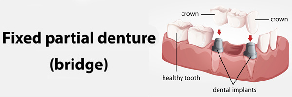 Crowns, Implants and Whitening