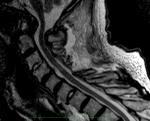 Myelopathy 2 Post-Op Lateral MRI1